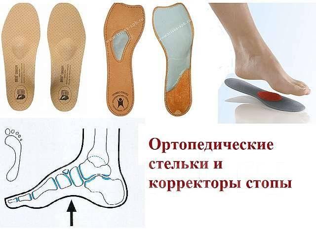 Как своими руками сделать ортопедические стельки своими руками