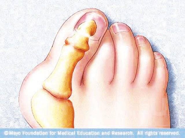 как лечить сустав большой палец на ноге чем лечить