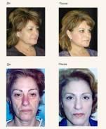 30-минутная нехирургическая подтяжка лица Skindulgence