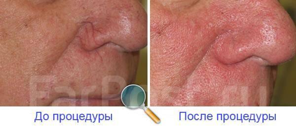 Лазерное лечение акне владивосток Перманентный макияж Территория сдт Родник Чебоксары