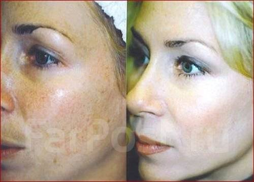 Маски для проблемной кожи лица форум