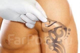 Удаление татуировок.