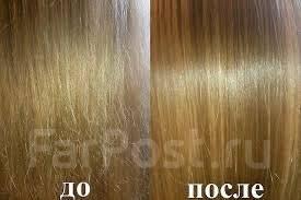 Удаление волос огнем