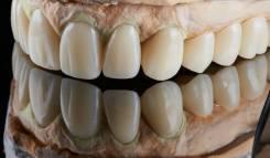Техник зубной. Средне-специальное образование, опыт работы 14 лет