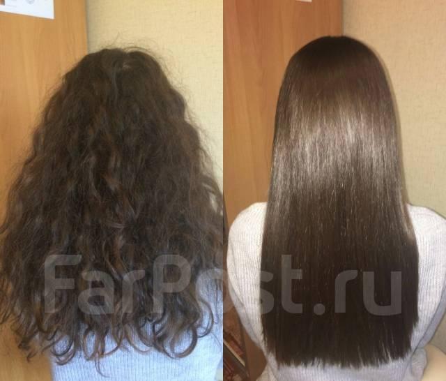 Пересадка волос бесшовным методом отзывы