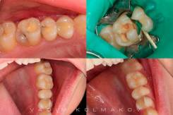 Врач-стоматолог-терапевт. Высшее образование, опыт работы 3 года
