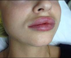 Увеличение губ, контурная пластика!. Акция длится до 31 августа