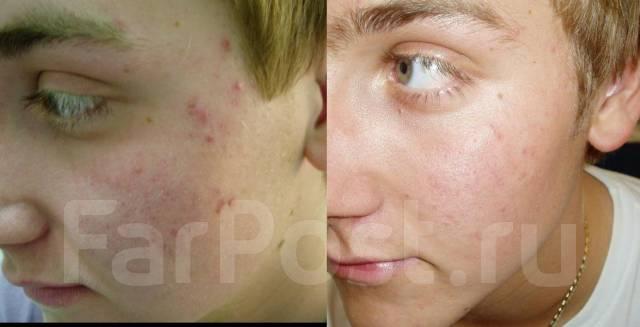 Лечение акне, чистка лица