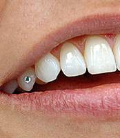 Скайс - уникальное украшение вашей улыбки !