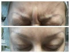 Опытный косметолог. Мезотерапия, контурная пластика.