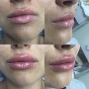 Врач-косметолог: Ботокс. Контурная пластика. Мезотерапия, ревитализация