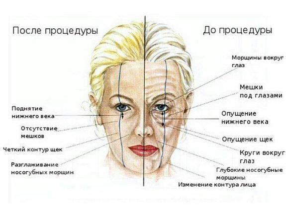 Косметолог натуральная косметика