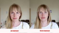 Эстетика лица. Мягкая мануальная коррекция