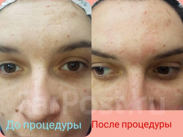 Чистки лица, bb glow treatment, маски, пилинги. Массаж лица. Депиляция