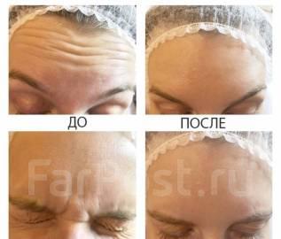 Услуги опытного косметолога, ботокс, диспорт, Владивосток